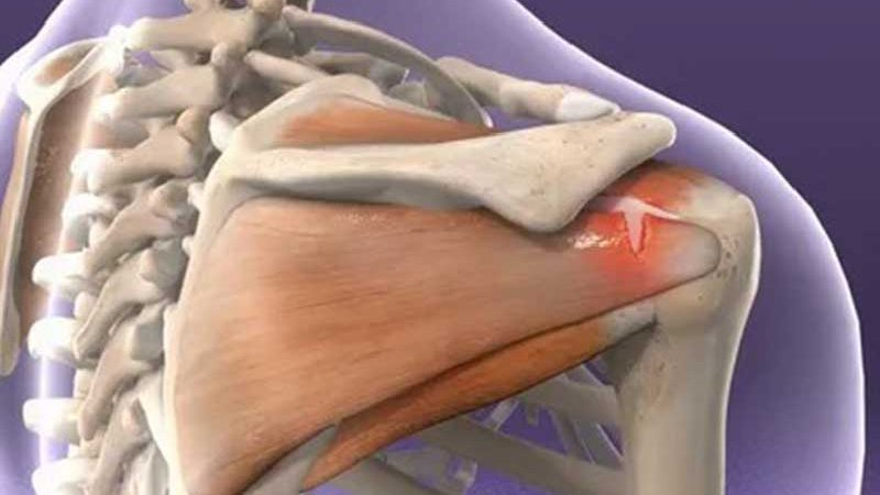 Rotator Cuff & Shoulder Conditioning Program For Better Health