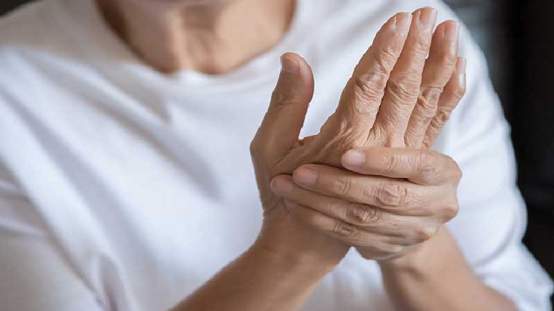 Arthritis Treatment