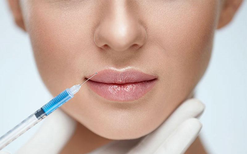 Juvéderm Lumps massage in lips